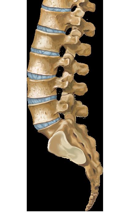 Lumbar Spinal Stenosis with Spondylolisthesis - SpineUniverse